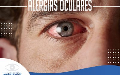 Alergias oculares